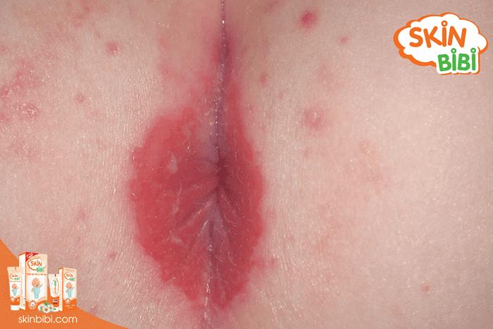 Vùng da ở hậu môn ửng hồng hoặc đỏ ửng là dấu hiệu đầu tiên để nhận biết hăm hậu môn ở trẻ