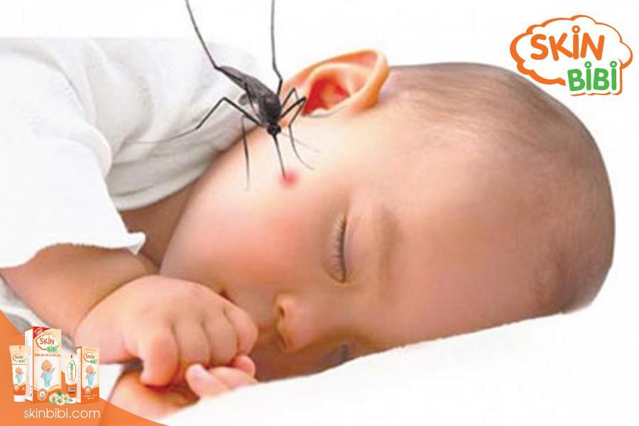mẹo giúp trẻ giảm sưng ngứa do muỗi đốt