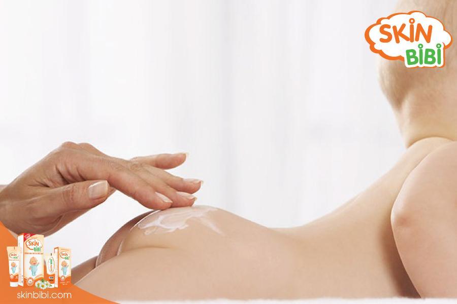 Sử dụng cùng các loại kem trị hăm để có hiệu quả điều trị tốt nhất