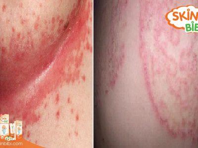 Thời tiết giao mùa cẩn thận khi nhầm lẫn nấm da và hăm tã
