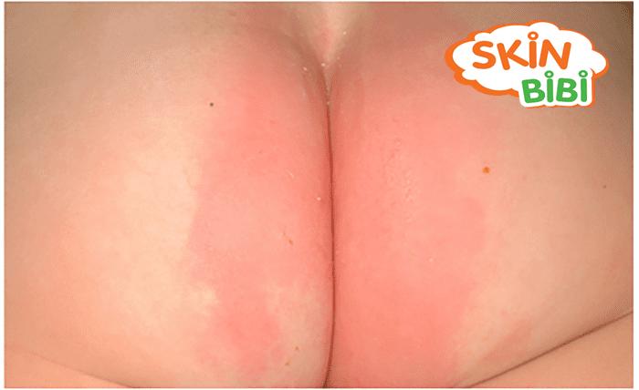 Vết hăm mông bắt đầu xuất hiện vết đỏ